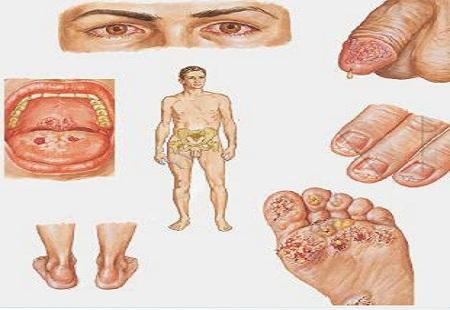 Các bệnh hoa liễu thường gặp hiện nay. Cách phòng tránh