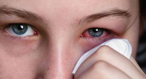 Bệnh lậu ở mắt: Biểu hiện và cách chữa trị
