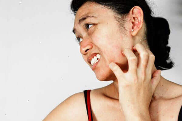 Bệnh sùi mào gà có gây ngứa không?