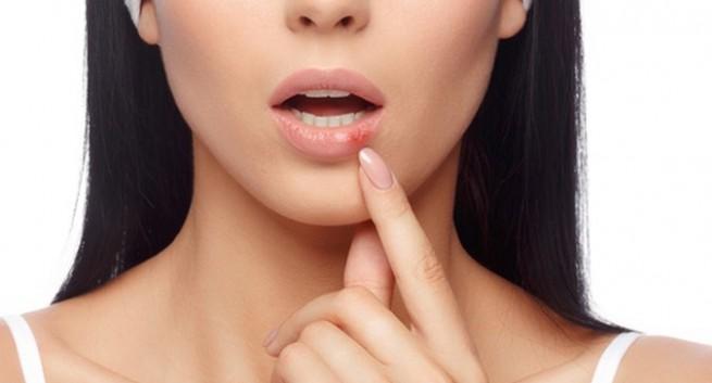 Sùi mào gà ở miệng và cách chữa trị hiệu quả