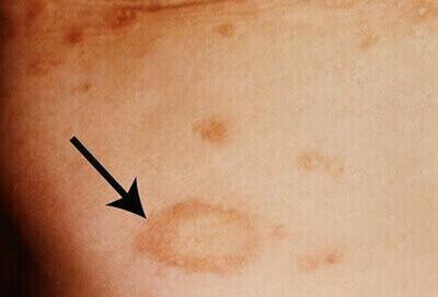 Dấu hiệu bệnh giang mai ở nam giới và nữ giới