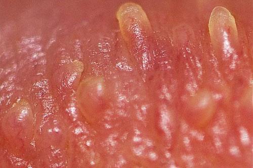 Chuỗi hạt ngọc âm vật ở nữ giới là bệnh gì?