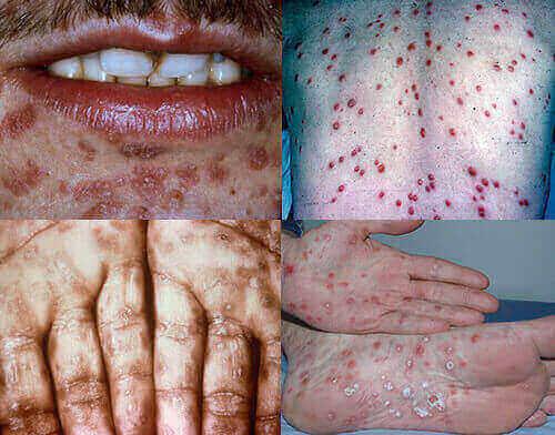 Hậu quả của bệnh giang mai khủng khiếp thế nào?