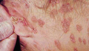 Hình ảnh bệnh giang mai ở nam giới