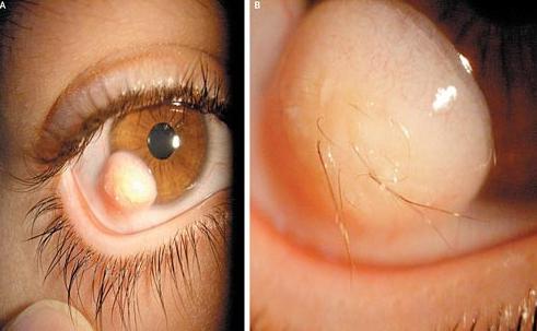 Biểu hiện bệnh sùi mào gà ở mắt