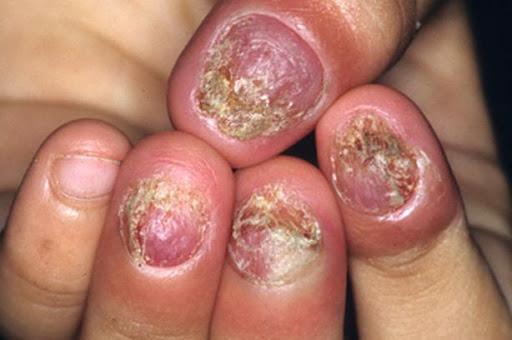 Bệnh nấm móng tay là gì?