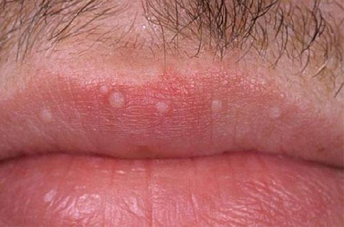 Biểu hiện bệnh sùi mào gà ở miệng, lưỡi và cổ họng
