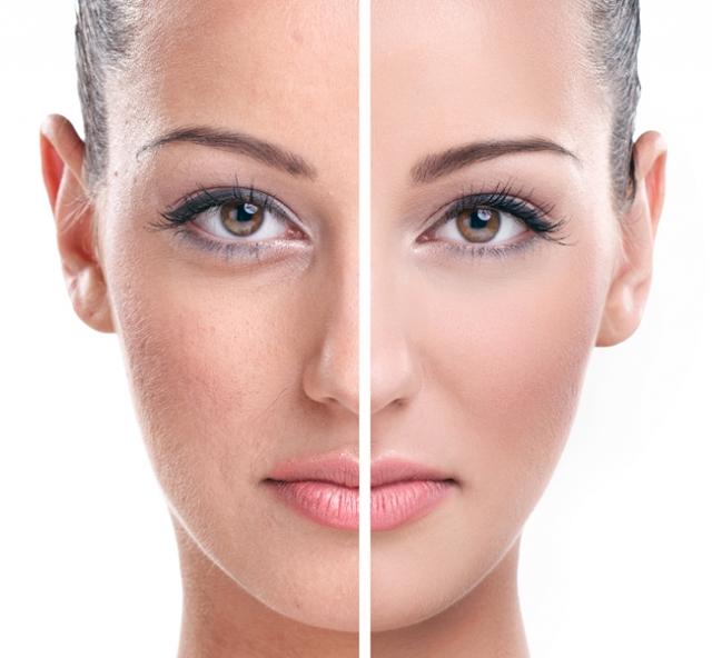 Trị nám da ở đâu tốt và hiệu quả