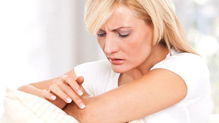 Các loại bệnh viêm da phổ biến hiện nay